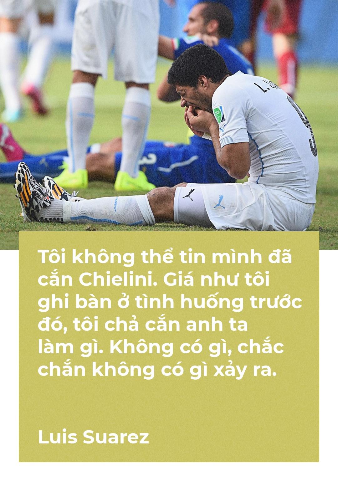 Bo mat nao cho Luis Suarez o World Cup 2018 anh 6