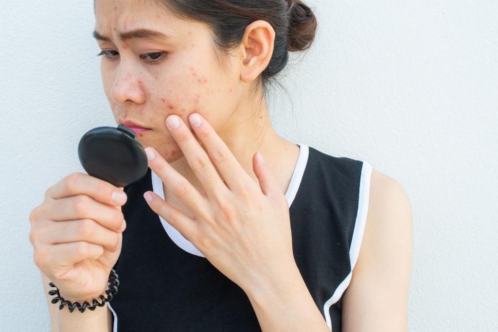 5 cách giúp bạn trị sẹo thâm