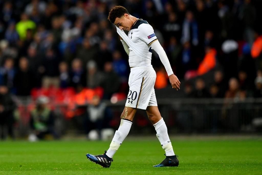 Harry Kane khien Tottenham bi loai khoi cup chau Au hinh anh 5
