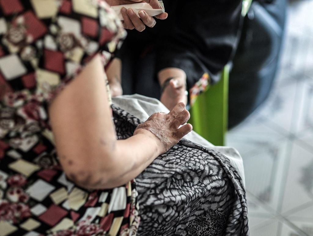 'Vet seo axit': Long vi tha trong doi mat toi hinh anh 6