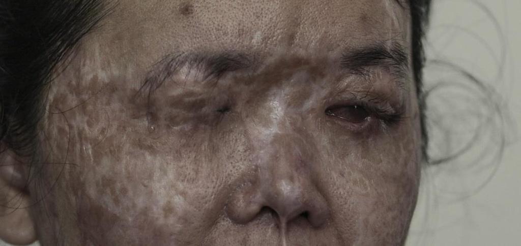'Vet seo axit': Long vi tha trong doi mat toi hinh anh 5