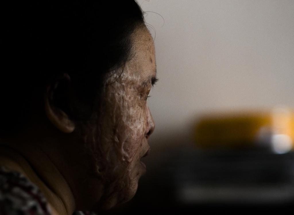 'Vet seo axit': Long vi tha trong doi mat toi hinh anh 1