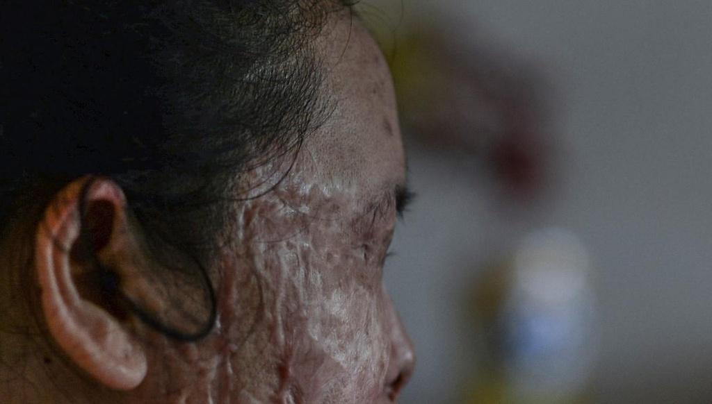 'Vet seo axit': Long vi tha trong doi mat toi hinh anh 2