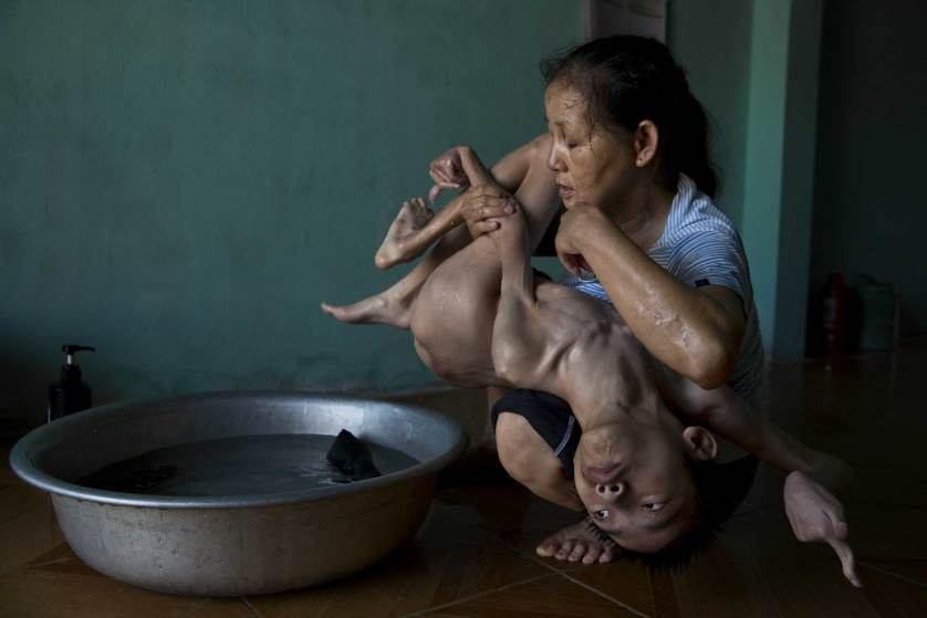 Chu tich FIFA duoi con mua tien vao top anh noi bat cua TIME hinh anh 13 Tran Thien Nhan, with severely malformed head and diminutive body, is an Agent Orange victim in Danang, Vietnam. His mother, Ngo Thi Tinh, and grandmother, The Thi Dao, care for him.