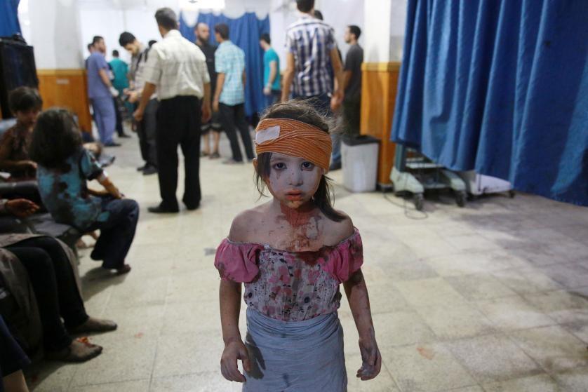 Chu tich FIFA duoi con mua tien vao top anh noi bat cua TIME hinh anh 7 Một bé gái Syria bị thương ở đầu đứng trong khu vực cấp cứu của một bệnh viện dã chiến ở khu vực do lực lượng chống chính phủ kiểm soát ở thành phố Douma, sau các đợt không kích của lực lượng chính phủ. Ảnh chụp ngày 22/8.