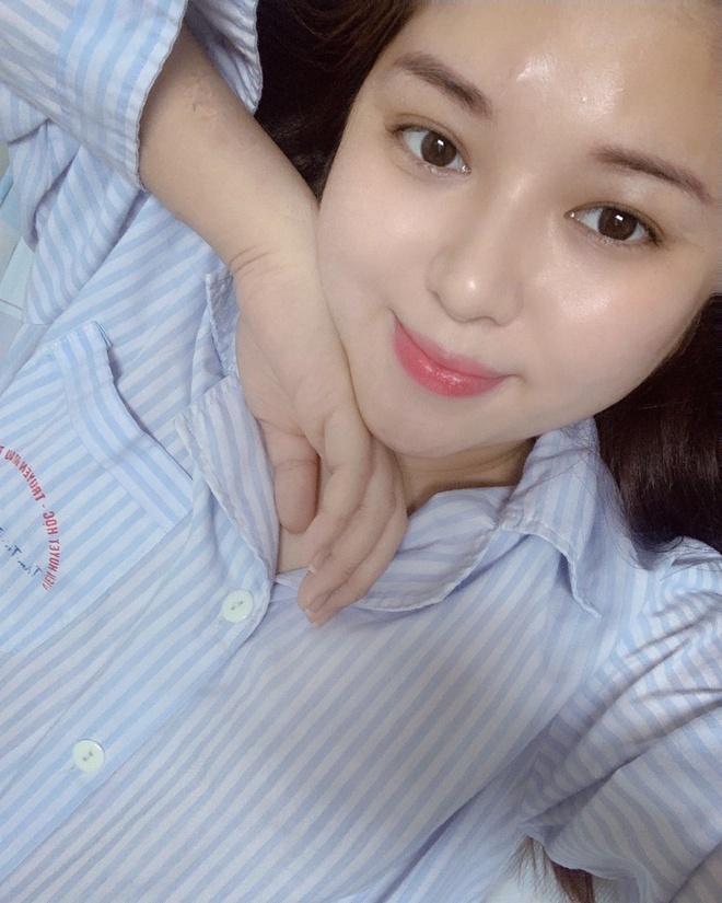 MC The thao Dieu Linh ung thu mau anh 3