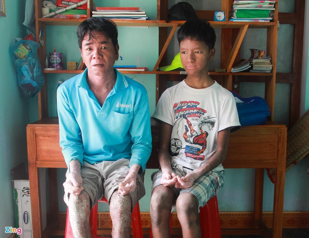 Hoc sinh 'nguoi ran' o Quang Nam hinh anh 1