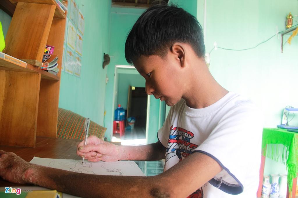 Hoc sinh 'nguoi ran' o Quang Nam hinh anh 2