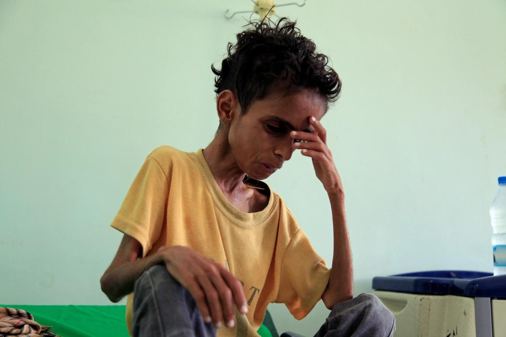 Nguoi cha Yemen vinh biet con gai 4 thang tuoi qua doi vi doi hinh anh 4