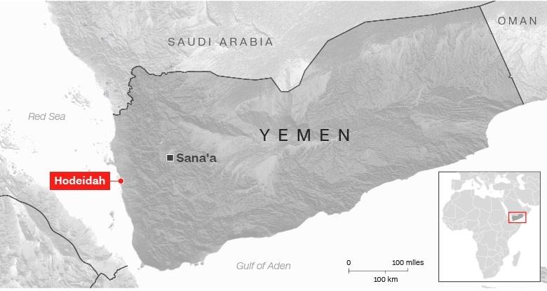 'Qua yeu de khoc', 5 trieu tre em Yemen bi nan doi de doa hinh anh 2