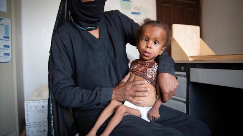 'Qua yeu de khoc', 5 trieu tre em Yemen bi nan doi de doa hinh anh 1