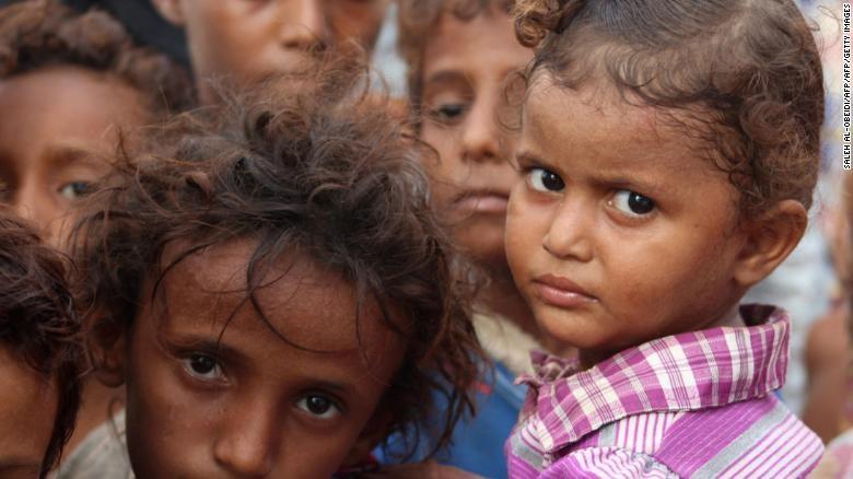 'Qua yeu de khoc', 5 trieu tre em Yemen bi nan doi de doa hinh anh 3