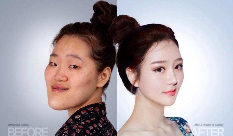 Goo Yoon-I sở hữu vẻ đẹp hoàn hảo theo tiêu chuẩn Hàn sau khi dao kéo. Ảnh:  Cinderella Plastic Surgery.