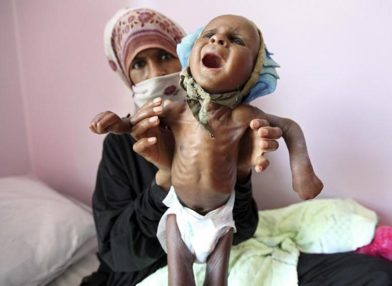 Tre Yemen con da boc xuong vi nan doi tham khoc hinh anh 8