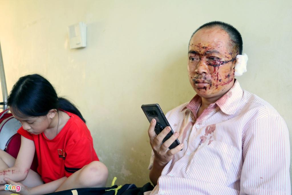 Nạn nhân xe Phương Trang: Người, máu văng khắp nơi