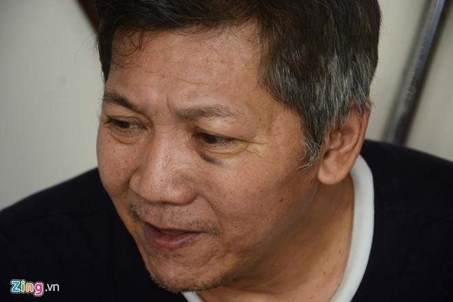 Co the khoi to vu vo su Nam Nguyen Khanh bi danh toi tap hinh anh 1