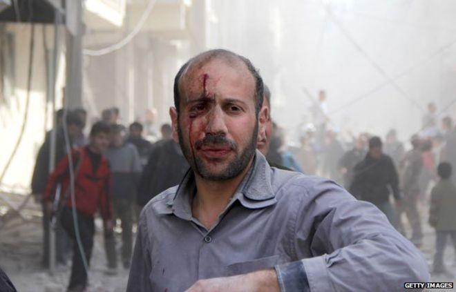 Cuoc khung hoang khong hen hoi ket o Syria hinh anh 3