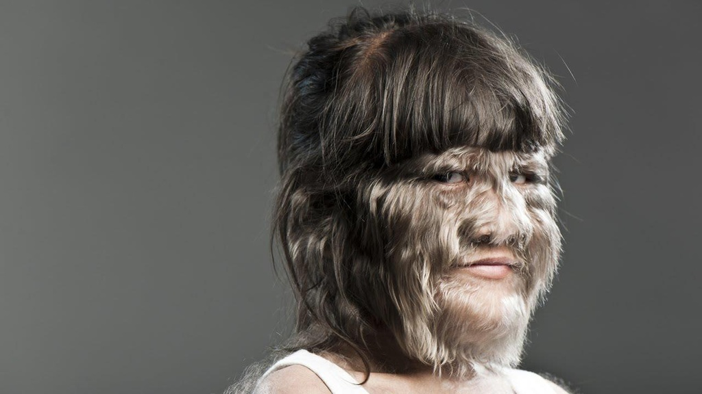 Hypertrichosis anh 1