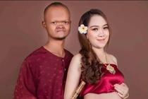 Cap dua lech noi tieng Campuchia sinh con trai dau long hinh anh