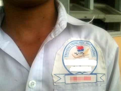 Logo truong hoc gay phien hinh anh