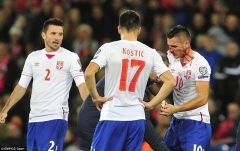 Bale ghi ban, DT xu Wales khien doi thu do mau hinh anh 7