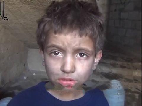 Be trai Syria phai an co de ton tai hinh anh