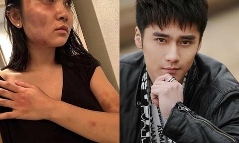 Mỹ nam 9X Trung Quốc bị lên án vì bạo hành bạn gái
