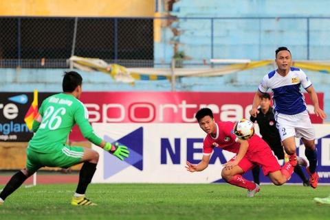 Tuyen thu U20 Viet Nam chan thuong nang o Cup quoc gia hinh anh 1