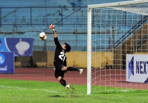Tuyen thu U20 Viet Nam chan thuong nang o Cup quoc gia hinh anh 10