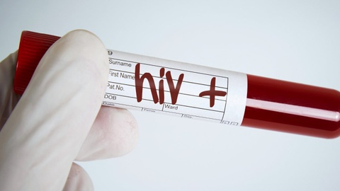 Lam gi khi bi phoi nhiem HIV? hinh anh