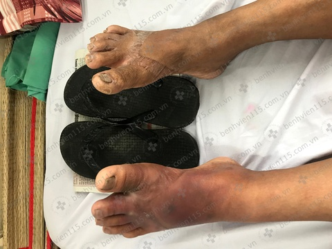 Tình cờ phát hiện mắc tiểu đường vì đi tông bị kẹp chân