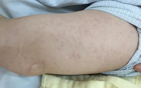 Một bệnh nhân ở Hà Nội biến chứng viêm não do sởi