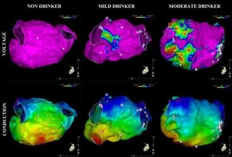 Những bức ảnh chứng tỏ uống rượu điều độ vẫn gây hại