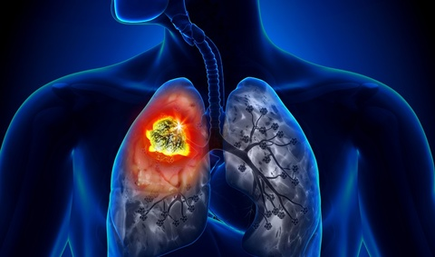 Phát hiện ung thư phổi sau một tháng ho khan không khỏi