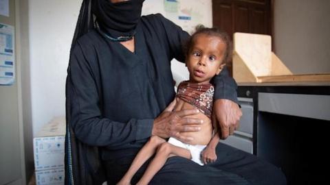 'Qua yeu de khoc', 5 trieu tre em Yemen bi nan doi de doa hinh anh