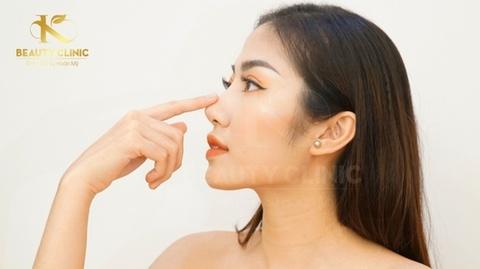 Khac phuc nhuoc diem cua mui tai K Beauty Clinic hinh anh