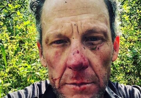 Cuu cua ro Lance Armstrong gap tai nan khi dap xe tren duong mon hinh anh