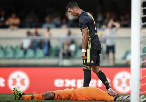 Thu mon Chievo bi gay xuong mui, dap vai sau va cham voi Ronaldo hinh anh