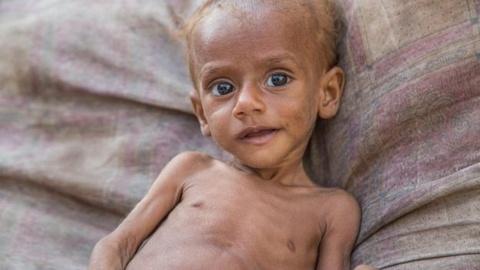 85.000 tre em o Yemen da chet vi thieu dinh duong hinh anh