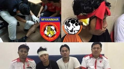 Myanmar buc xuc voi hanh vi con do cua CDV Malaysia hinh anh