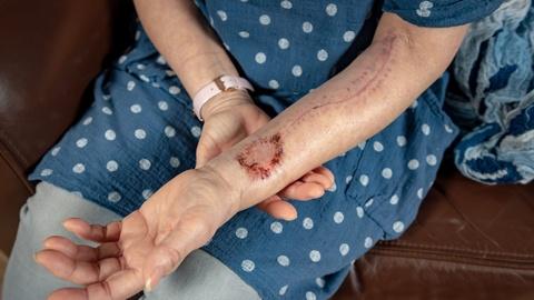 Bệnh nhân ung thư được tạo lưỡi mới từ da và cơ tay