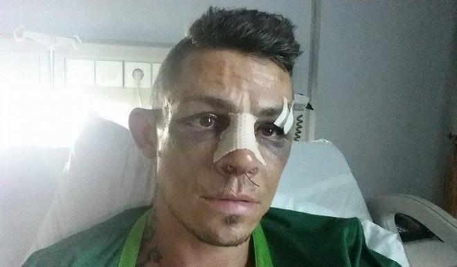 Arnaud Lepont - vo si danh tieng dong gop khong ngung cho MMA Viet Nam hinh anh 4