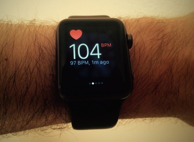 Apple Watch cuu song thieu nien 17 tuoi hinh anh 1