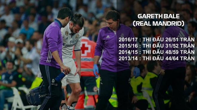 Gareth Bale dung phuong phap ky la chua chan thuong hinh anh 1
