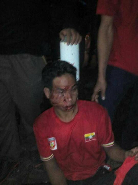 CDV Indonesia bi bang nhom Malaysia danh hoi dong hinh anh 1