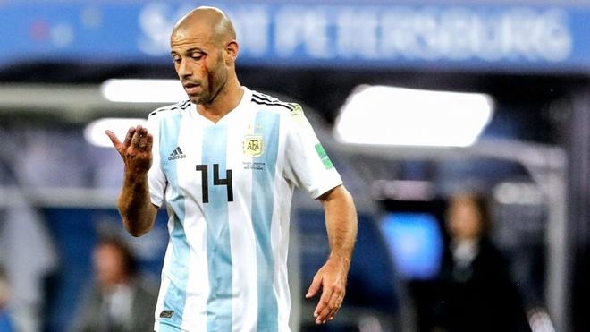 Quen Messi di, Argentina can do mau va Mascherano thu linh hon hinh anh