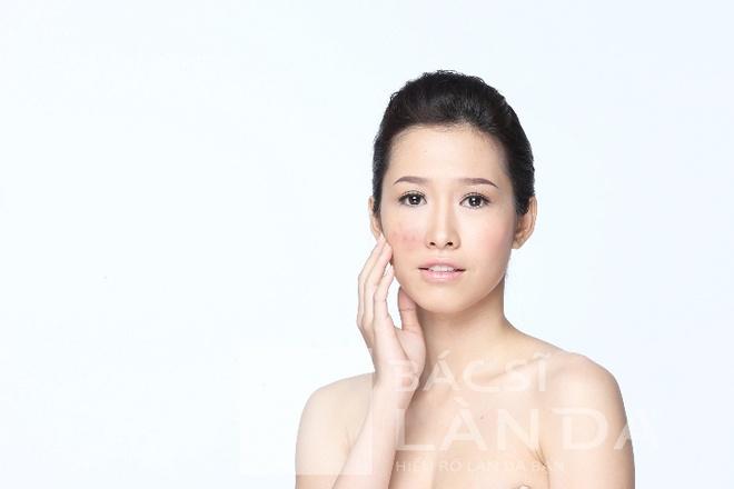 F5 cho lan da cung Phan Thu Quyen hinh anh 3