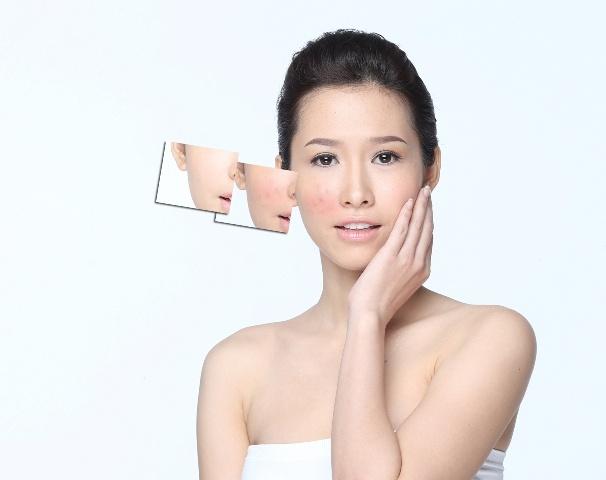 F5 cho lan da cung Phan Thu Quyen hinh anh 6