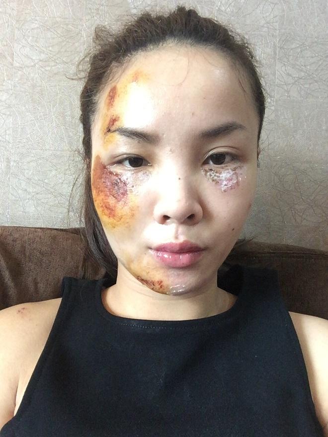 Yen Trang dang anh guong mat tray xuoc sau tai nan hinh anh 1 s