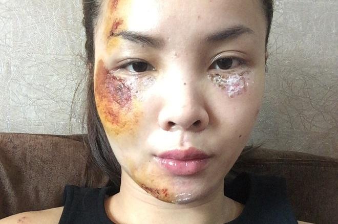 Yen Trang dang anh guong mat tray xuoc sau tai nan hinh anh